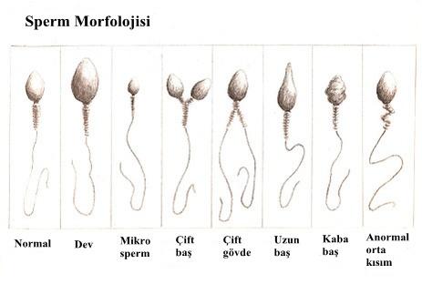 Sperm Morfolojisi (Sperm Şekli) Değerlendirmesi,