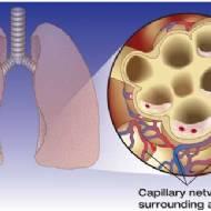 Akciğer Ödemi (Pulmoner Ödem)