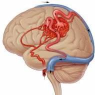 Arteriovenöz Malformasyon (AVM)