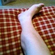 Bacak Krampları