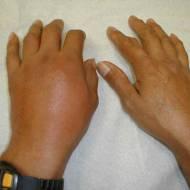 Gut Hastalığı (Damla Hastalığı)