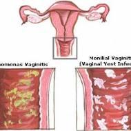 Mantar (Candida) Enfeksiyonu - Vajiniti