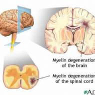 Multiple skleroz