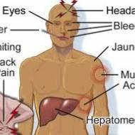 Sarıhumma (Yellow fever)