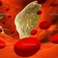Ateroskleroz (Damar Sertliği)-AS